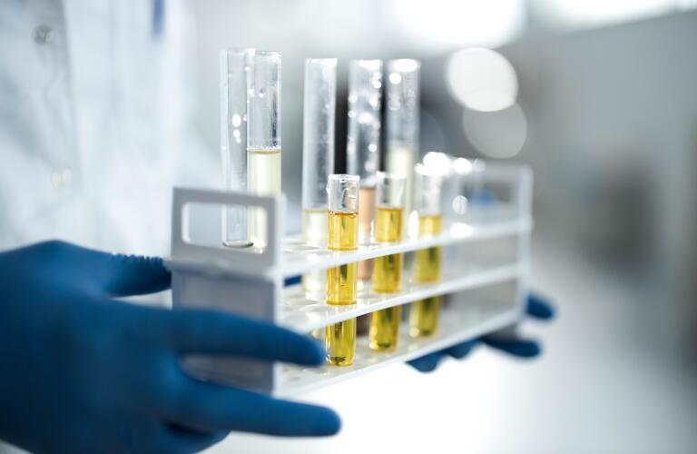 Close up of CBD oil in test tubes at laboratory.