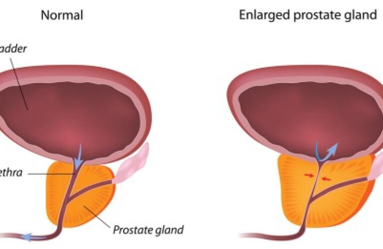 Transurethral Resection Of The Prostate Turp Procedure