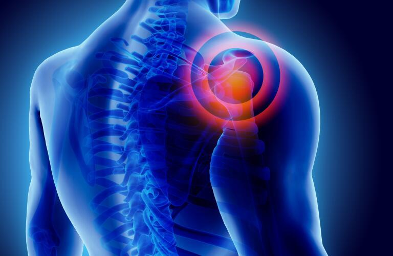 3D shoulder illustration with pain