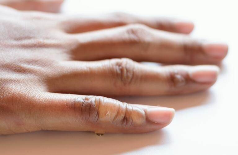 blistering second-degree burn on woman's fingers