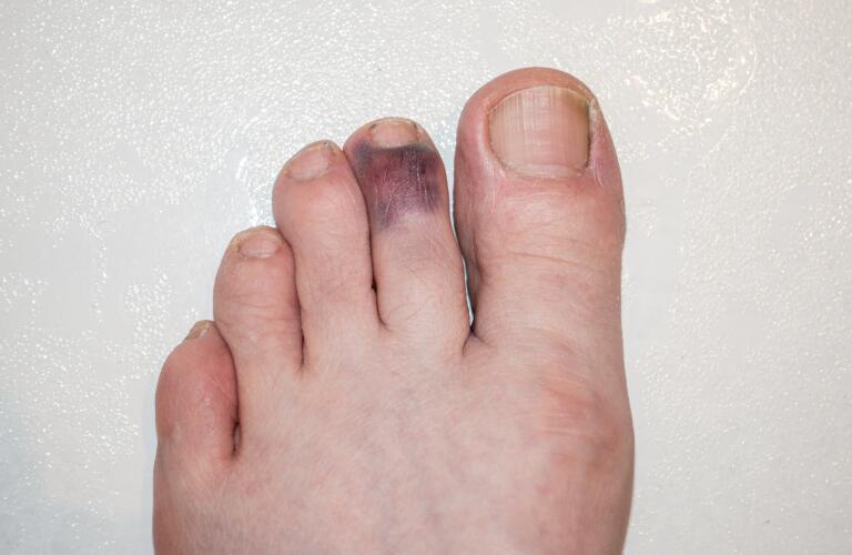 No reason bruising for yellow Random Bruising: