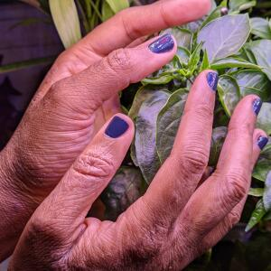 Handwashing Inflamed My Eczema Here's What I'm Doing to Repair My Hands