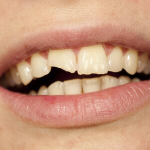 person's mouth showing front broken tooth