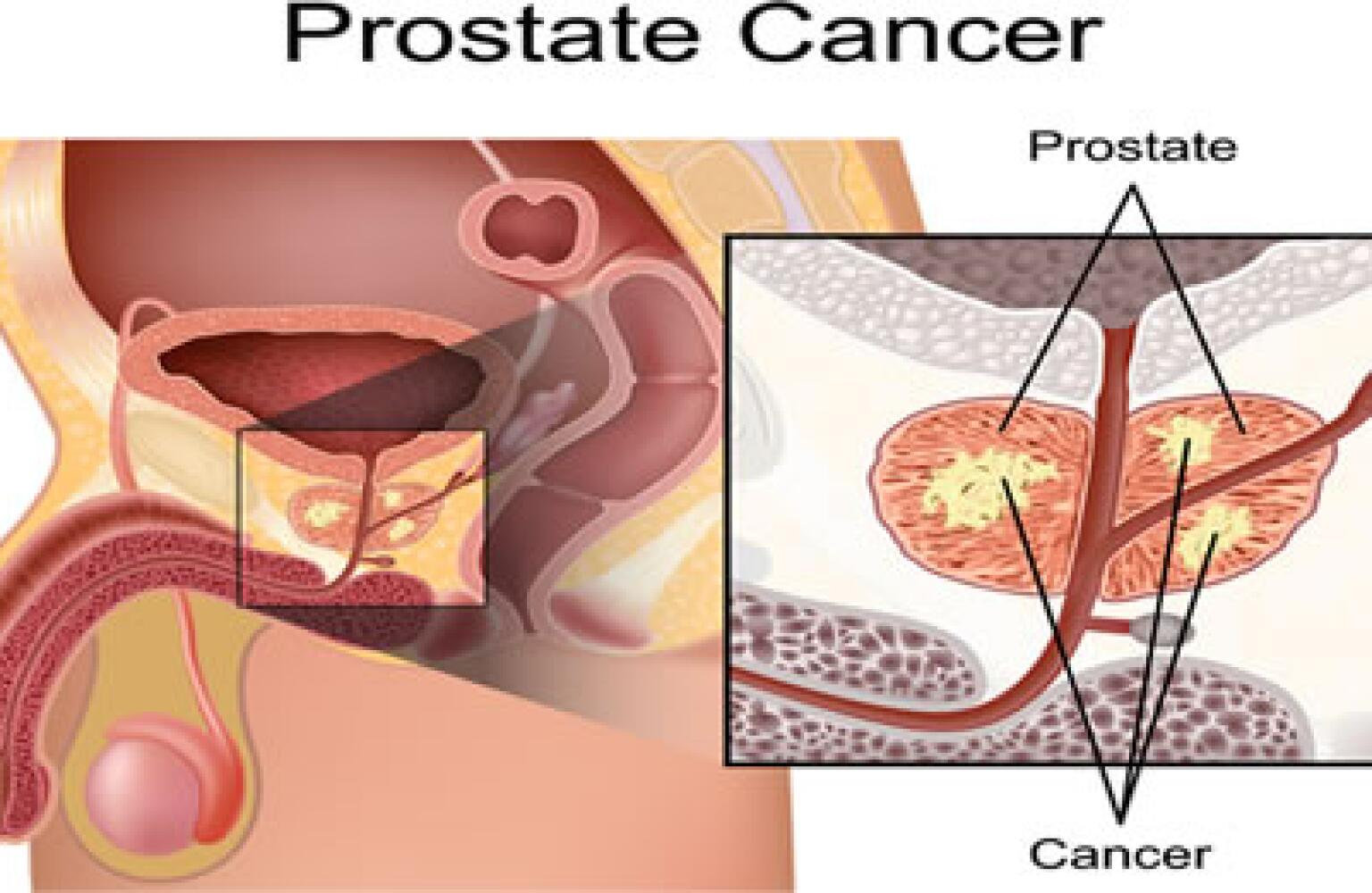 Dating Without My Prostate