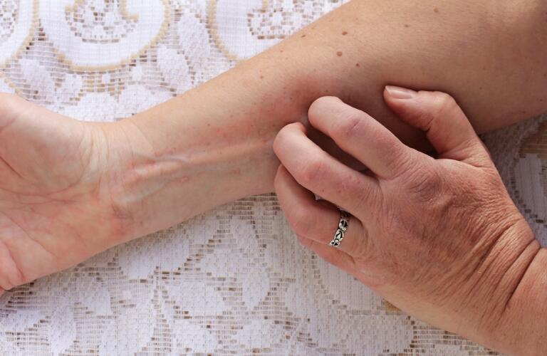 Los síntomas de la hepatitis C
