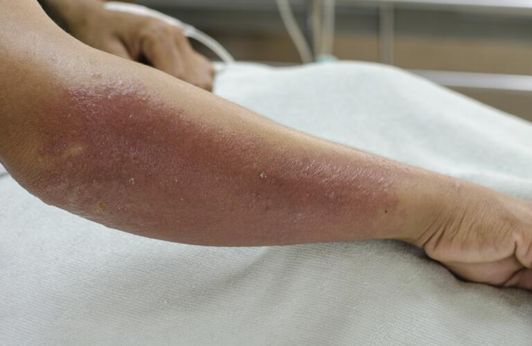 arm-with-blisters