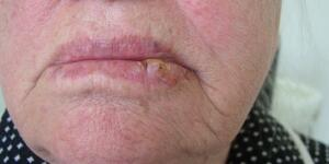 Mouth Cancer Pictures What Oral Cancer Sores Look Like