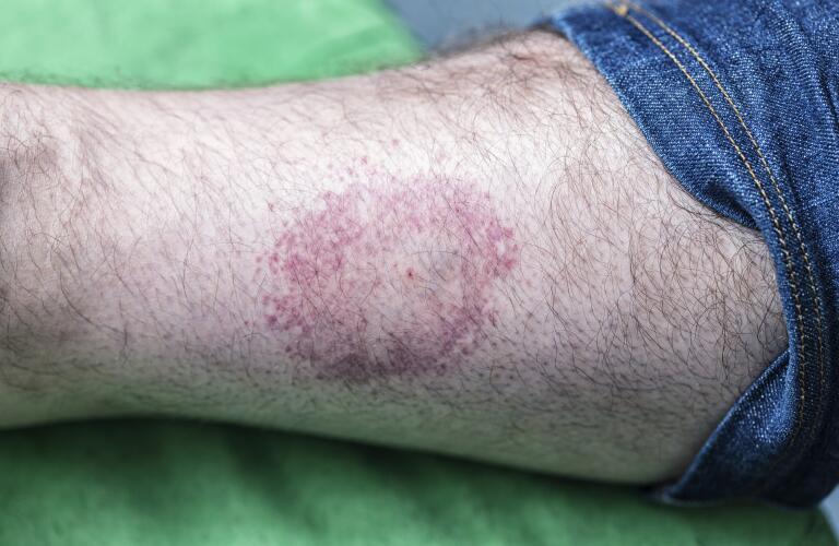 circular bull's eye tick bite rash on man's lower leg, a sign of Lyme disease