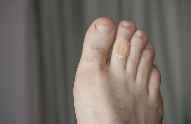 Close-up of corn removal pad on toe