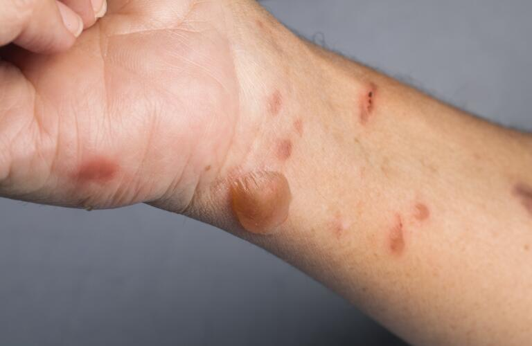 woman with second degree burn, burn blister on wrist
