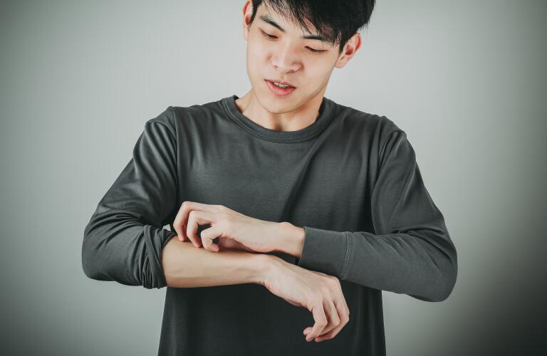 young man scratching skin on arm