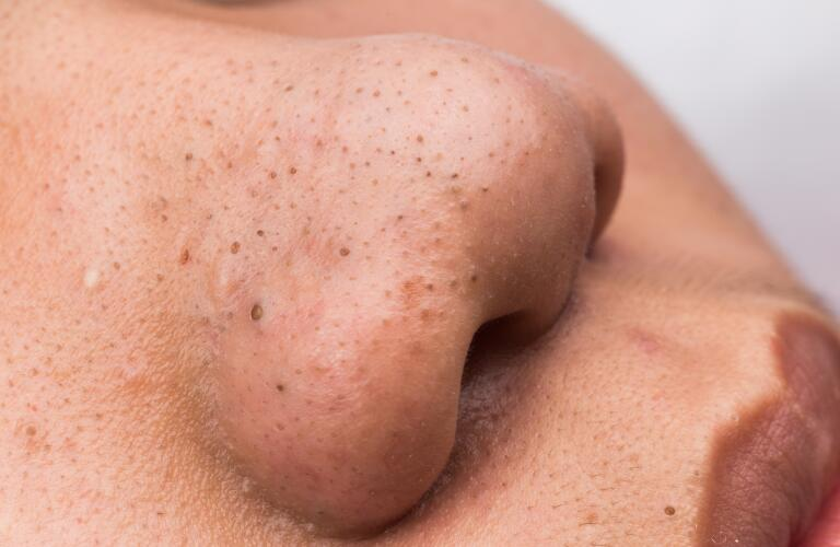 close-up of person's nose showing blackheads, a type of acne or pimple