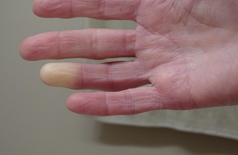 Close-up of Caucasian person's hand with Raynaud's phenomenon on ring finger