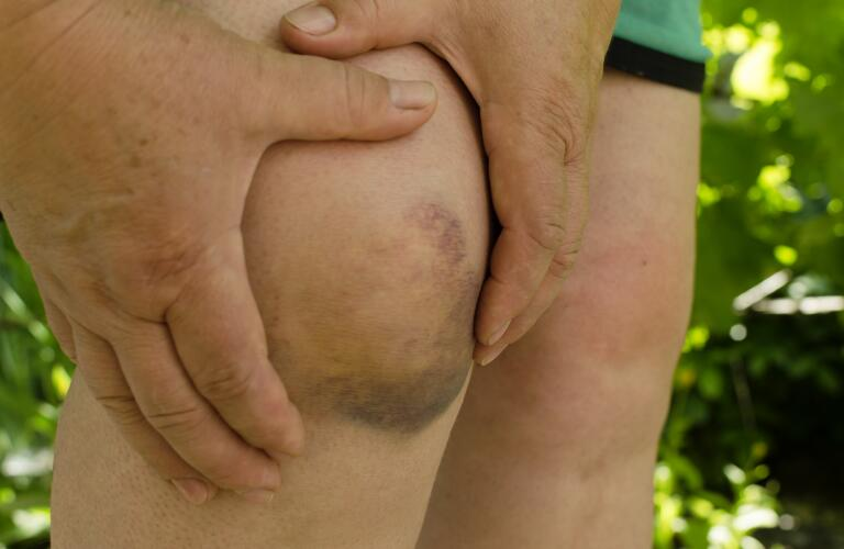 Closeup of woman with hematoma or bad bruise on knee