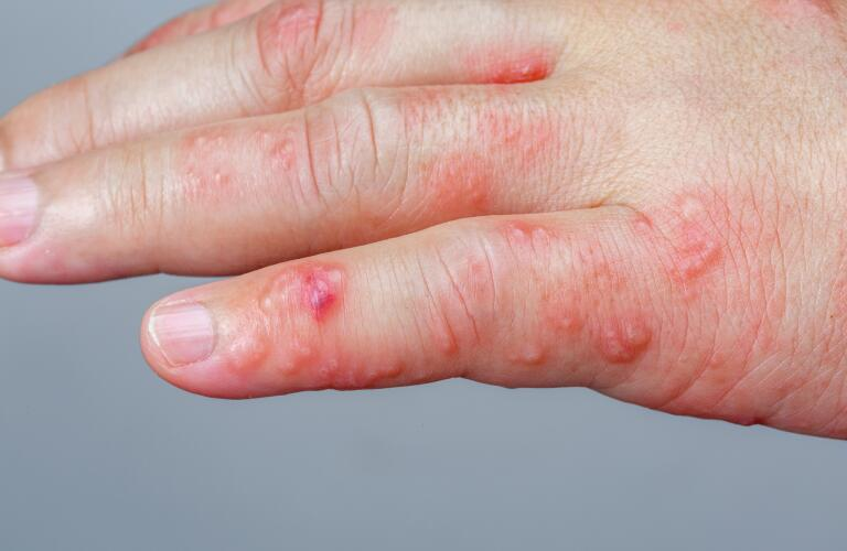 shingles (herpes zoster) rash and blisters on hand