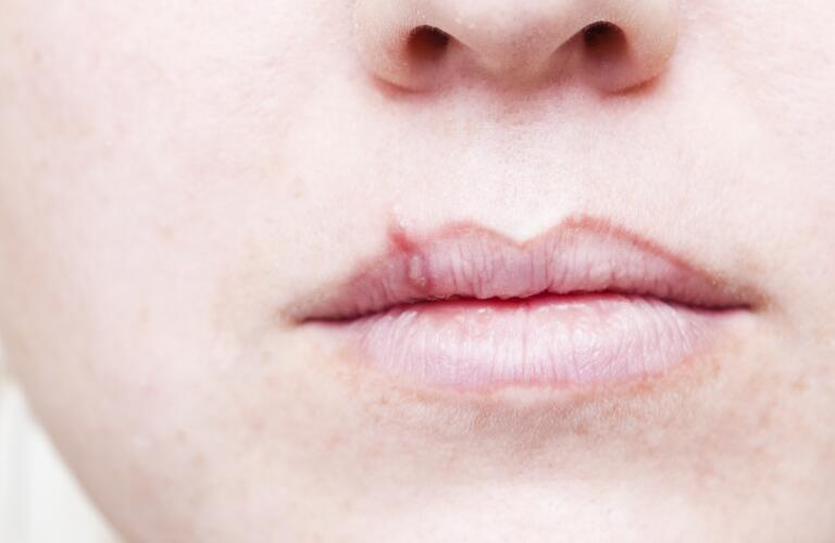 Close-up of cold sore on unseen Caucasian woman's lip
