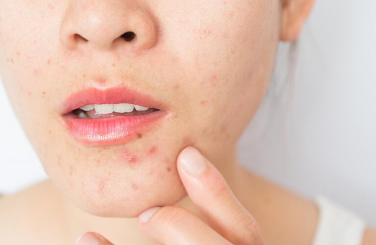 Boil vs. Pimple: How to Tell the Difference