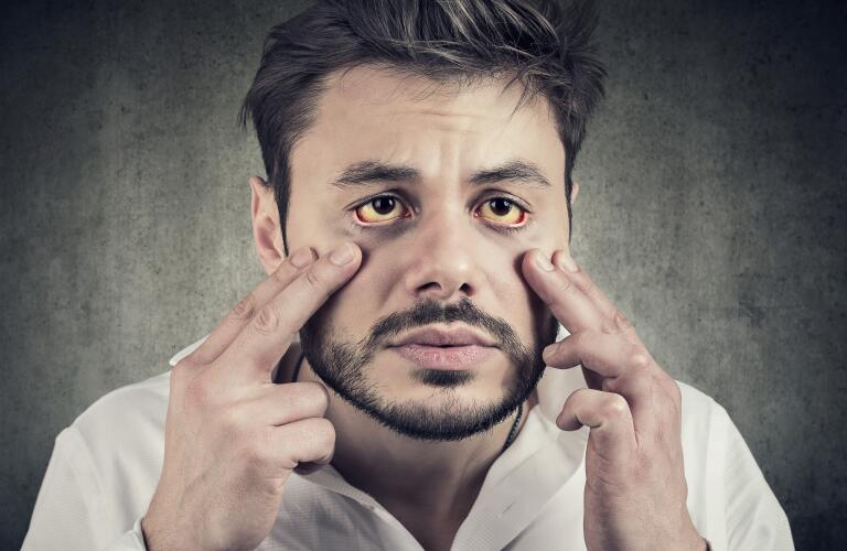 sick man with yellowing eyes as sign of jaundice