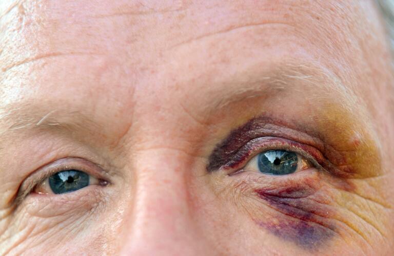 closeup image of senior man with a bruised and injured eye (black eye) looking at camera