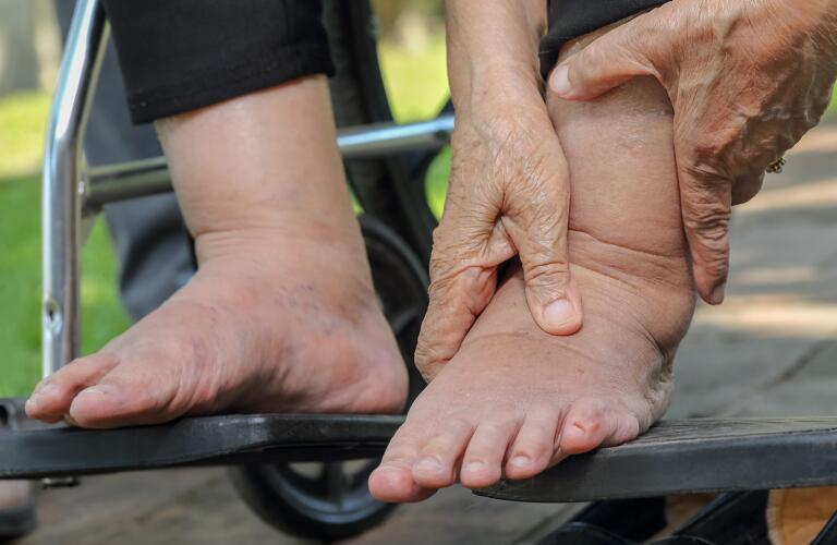 Close-up of unseen woman's feet in wheelchair with lymphedema