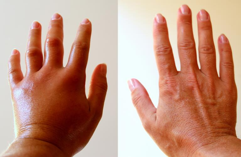 Edema and swelling in hand compared to normal hand