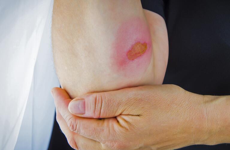 Skin burn