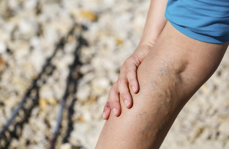 hand-on-leg-with-varicose-veins