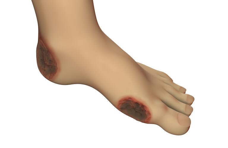 Diabetic foot ulcer illustration