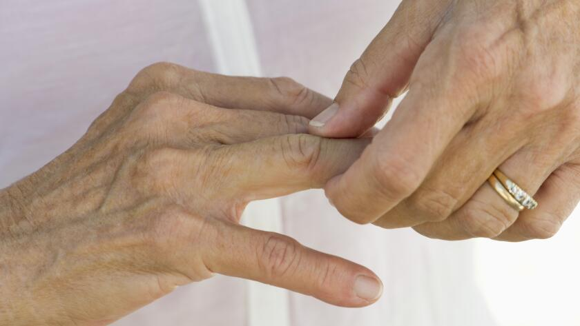 woman rubbing joints on hand