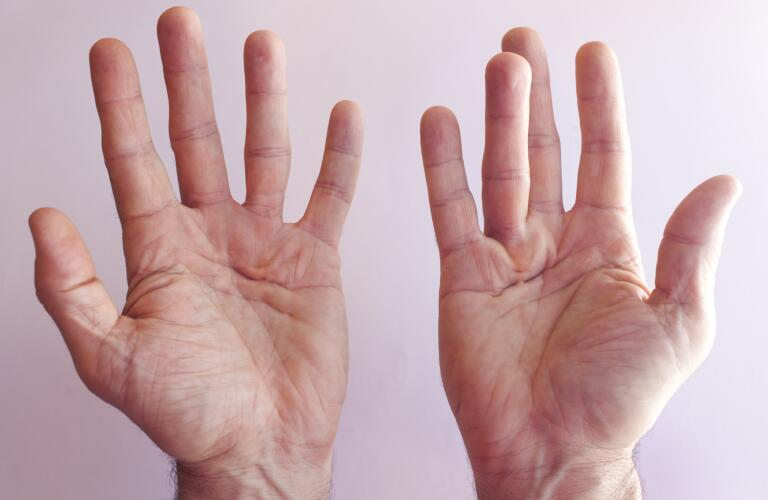 hands of man with dupuytren contracture