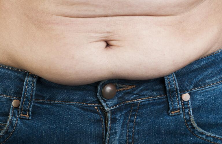 obese-man's-stomach