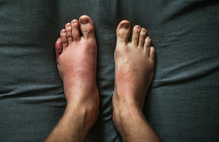 photo of man's swollen foot next to his normal size foot showing symptoms of infection or possible allergic reaction to insect bite or sting