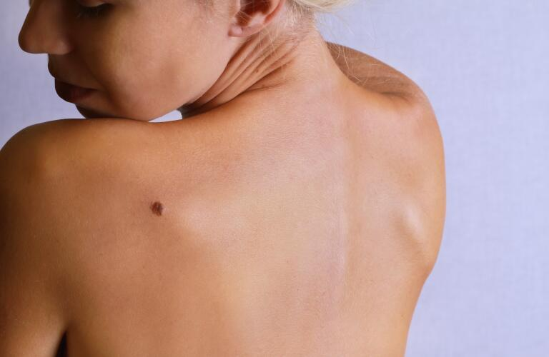 Woman with mole on back