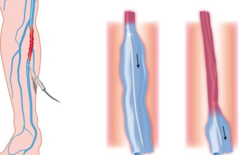 operatoria varicose laser