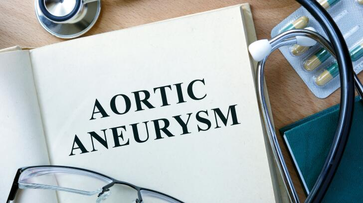 8 Things to Know About Aortic Aneurysms