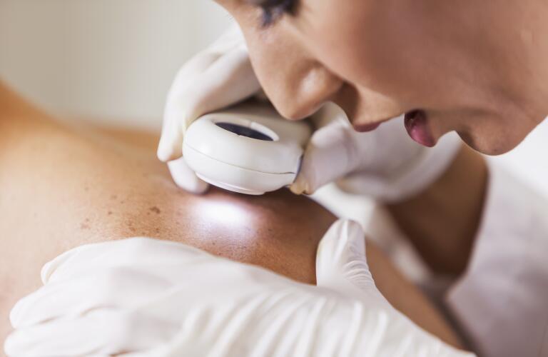 dermatologist-examining-skin