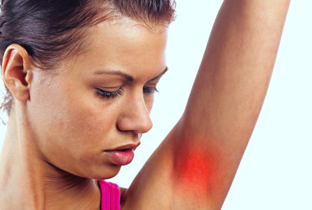 underarm pain