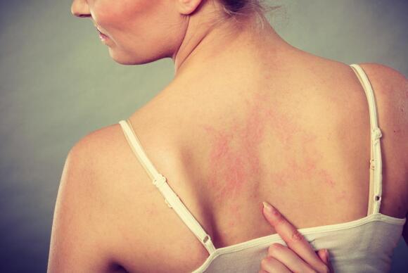 woman pointing at skin rash on back