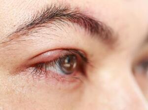 Stye On Eyelid Causes Symptoms Treatments Home Remedies