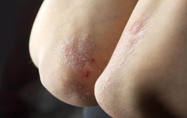 psoriasis-on-elbows