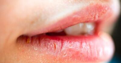 What Is A Lip Sore Blister On Lip Lip Bumps Lesions
