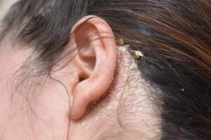 Ear Psoriasis   Psoriasis on the Ears   Healthgrades com
