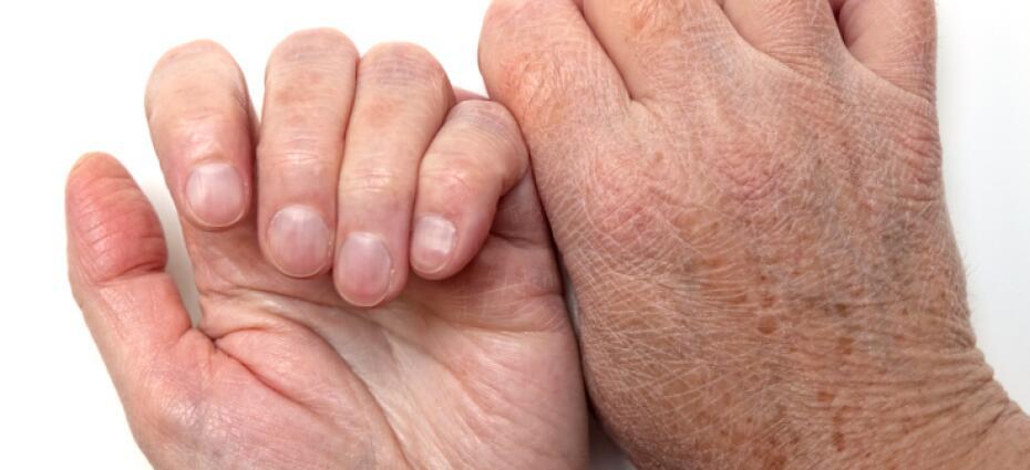 Thumb Pain - Symptoms, Causes, Treatments   Healthgrades com