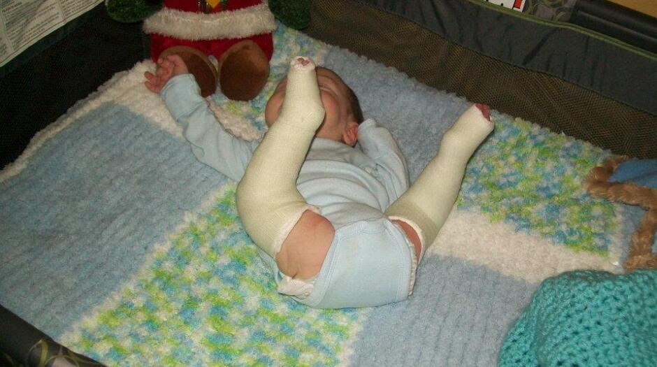 My Son's Clubfoot Journey