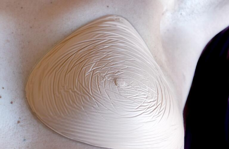 women with a prosthetic breast on the left side