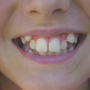 Young Girls teeth close-up