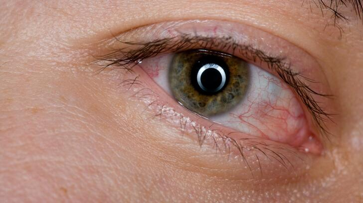 8 Common Eye Symptoms And What They Mean