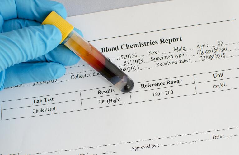 blood-vial-in-front-of-results-sheet