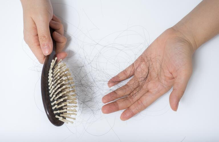 hair-loss-on-comb