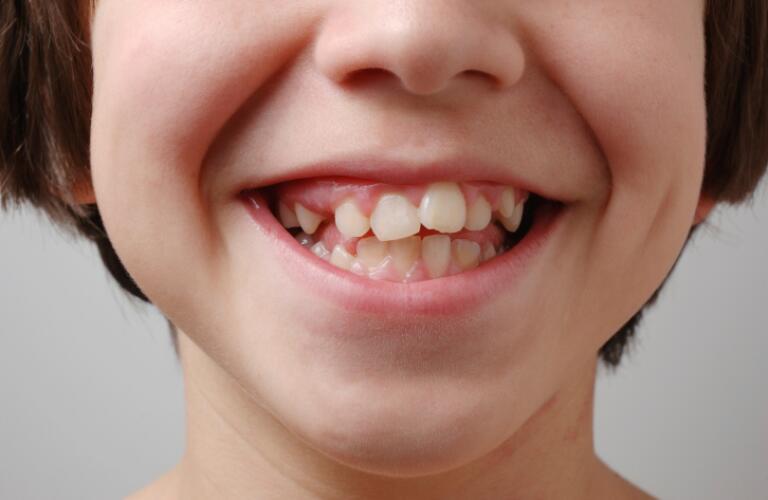 Crooked Teeth Before Braces